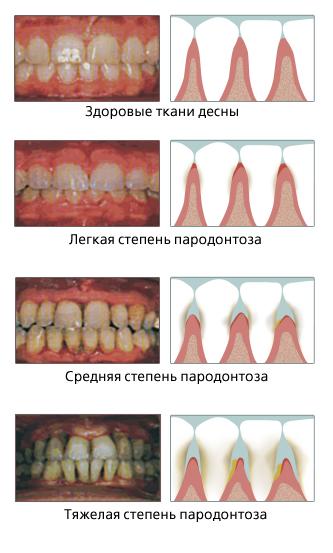 стадии пародонтоза