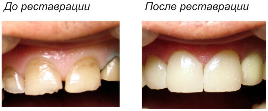 зуба и удаления нерва.